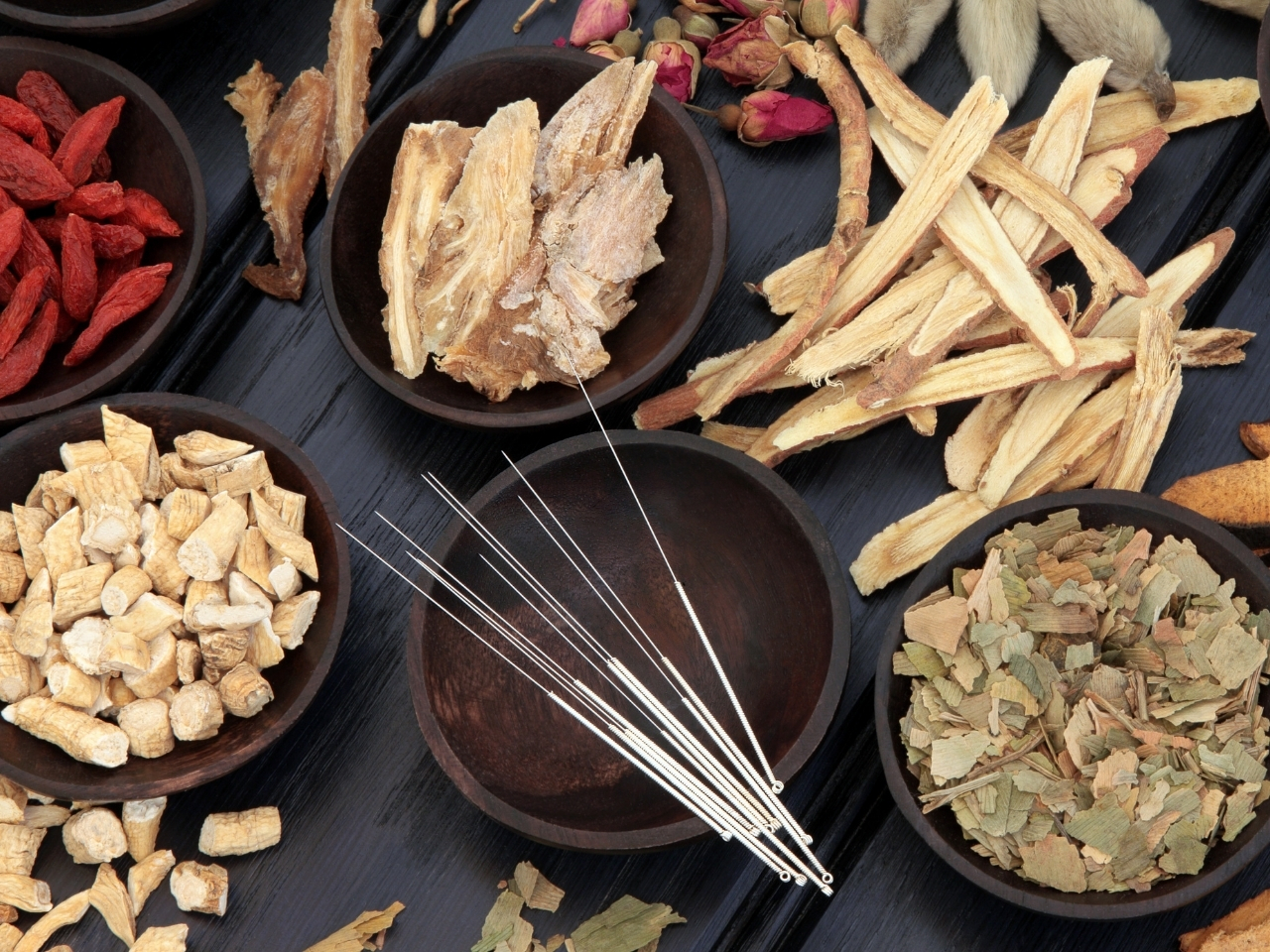 acupuncture needles and traditional chinese medicine herbs